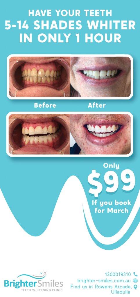 bright-teeth.jpg