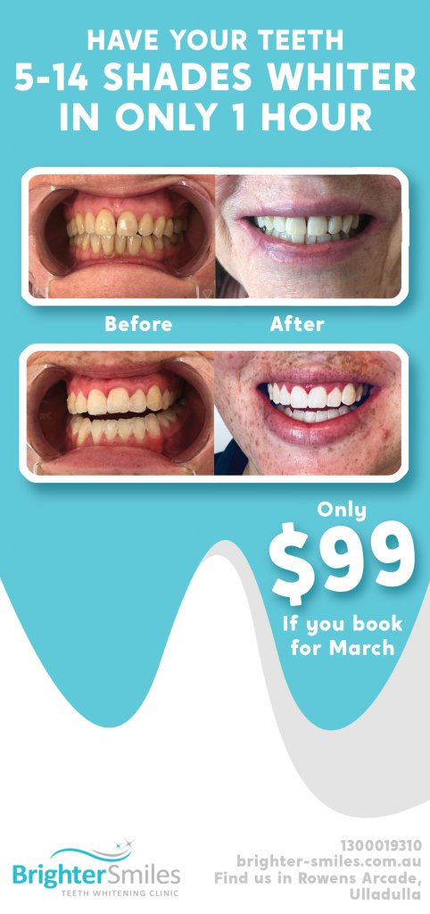 bright-teeth4.jpg